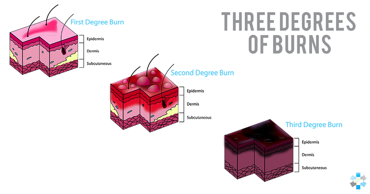 diagram showing 3 degrees of burns